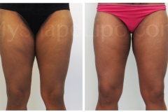 B-A-ONLY-photos-cr-OTHI-ITHI-KNEES-from-front-CA-2.5-wks-