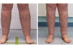 B-A-cr-CALVES-ANKLES-from-front-CC-6-mo-