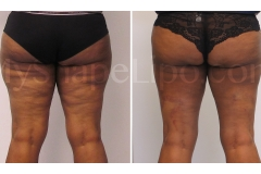 B-A-cr-OTHI-ITHI-KNEES-BR-from-back-DL-2-wks-
